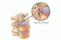 ¿Qué es una hernia de disco?
