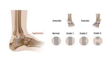 Causas del esguince de tobillo. Síntomas y tratamiento
