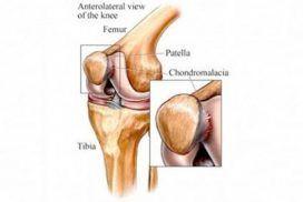 Condromalacia rotuliana, tratamiento.