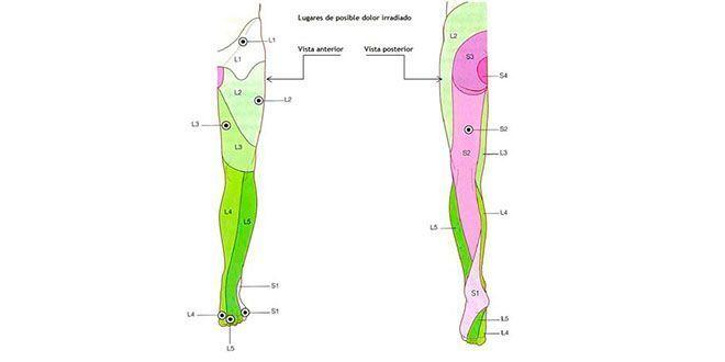 Lumbalgia y ciática