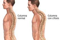 Cifosis dorsal: Tratamiento y alteración postural.