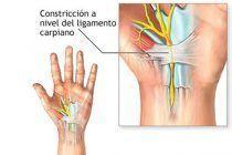 Síndrome del túnel Carpiano. ¿Qué es y cómo se trata?