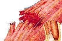 Rotura muscular ¿Qué es y cómo se diagnostica correctamente?
