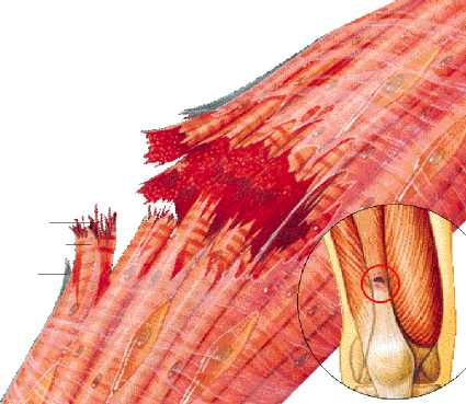 rotura muscular