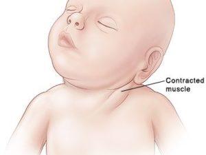 TORTÍCOLIS INFANTIL CONGÉNITA: ¿Qué es y cómo se trata?