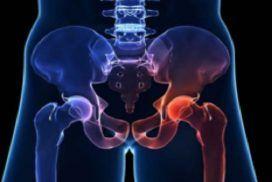 Tratamiento de fracturas de cadera y prótesis de cadera