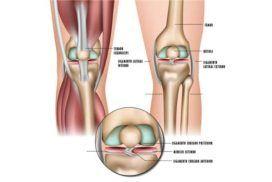 ¿Qué son los meniscos de la rodilla y cuáles son sus lesiones?