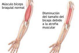 Fisioterapia infantil: Atrofia muscular espinal.
