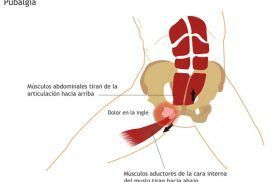 Pubalgia, ¿Qué es?, síntomas y tratamiento.