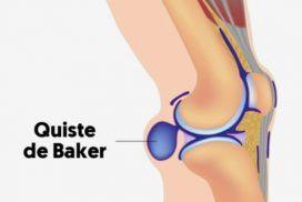 Quiste de Baker, ¿Qué es?, síntomas y tratamiento
