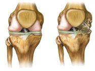 Artrosis y Artritis ¿Qué son, síntomas y cual es su tratamiento?