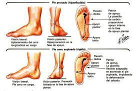 Podología, Pie plano y pie cavo, dos alteraciones muy comunes en el miembro inferior.
