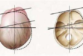 Plagiocefalia,  causas y tratamiento