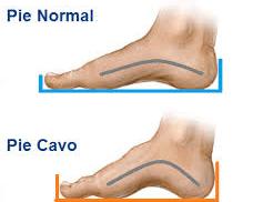 Pie plano y pie cavo, ¿Qué es y sus lesiones asociadas?