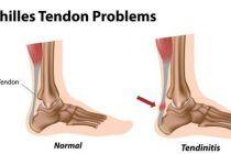 Tratamiento de tendinitis y tendinosis con EPI y ejercicios excéntricos