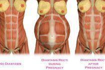 Diastasis abdominal ¿Qué es y como se trata?