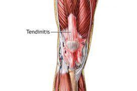 Ejercicios y estiramientos para las tendinopatías de cuádriceps e isquiotibiales