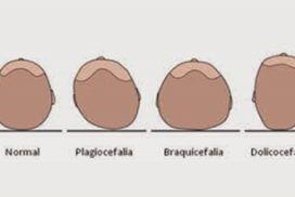 ¿Qué es un craneómetro y cómo medir asimetrías craneales con la plagiocefalia?