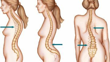 Lordosis y hernia discal