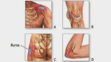 Todo lo que necesitas saber sobre la Bursitis