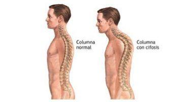 ¿Qué es la cifosis dorsal y cómo corregirla?