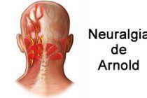 La neuralgia de Arnold