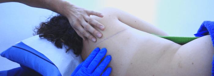 ratamiento de cicatriz quirúrgica, mediante fisioterapia y ejercicio físico