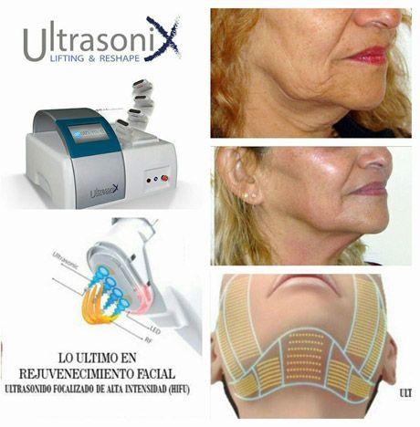 HIFU Liposucción sin cirugía