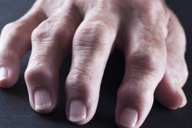 Artritis Reumatoide: causas, síntomas y tratamiento