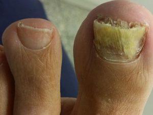 Hongos en las uñas: Qué son y cómo se tratan