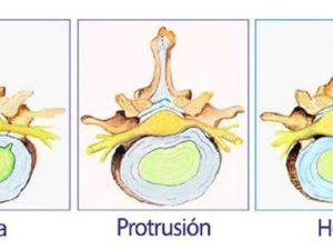 Protrusión discal: ¿Qué debo hacer?