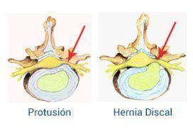 Diferencias entre Hernia Discal y Protusión