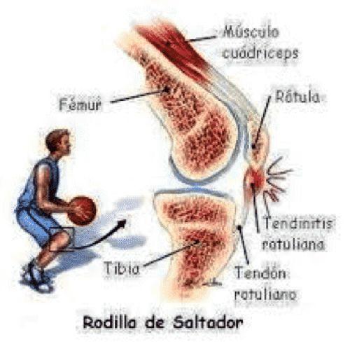 Lesiones en el baloncesto 3