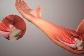 Tendinitis de los flexores de la mano