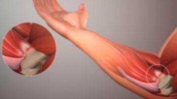 Tendinitis de los flexores