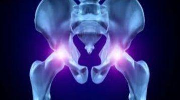 artrosis en la cadera