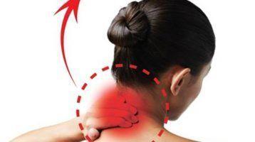 Tortícolis. Causas y tratamiento
