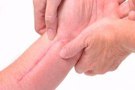 Importancia de la rehabilitación después de una cirugía