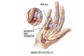 Dedo en resorte o dedo en gatillo: causas y factores de riesgos