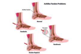 Tendinopatías, ejercicio y movimiento como tratamiento