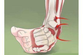Tipos de esguince de tobillo. Tratamientos según la fase