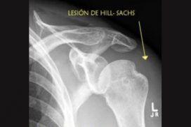 Lesión de Hill Sachs