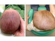 5 Recomendaciones para prevenir la plagiocefalia