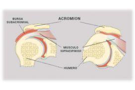 Por qué se produce el síndrome subacromial