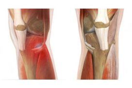 Tendinitis de la pata de ganso, causa, tratamiento y más