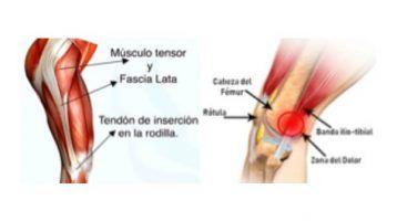 Tensor fascia lata ¿Qué es y cómo tratarla?