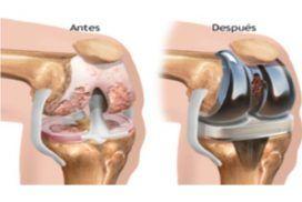Prótesis de rodilla todo lo que necesitas saber