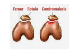 Condromalacia rotuliana, tratamiento