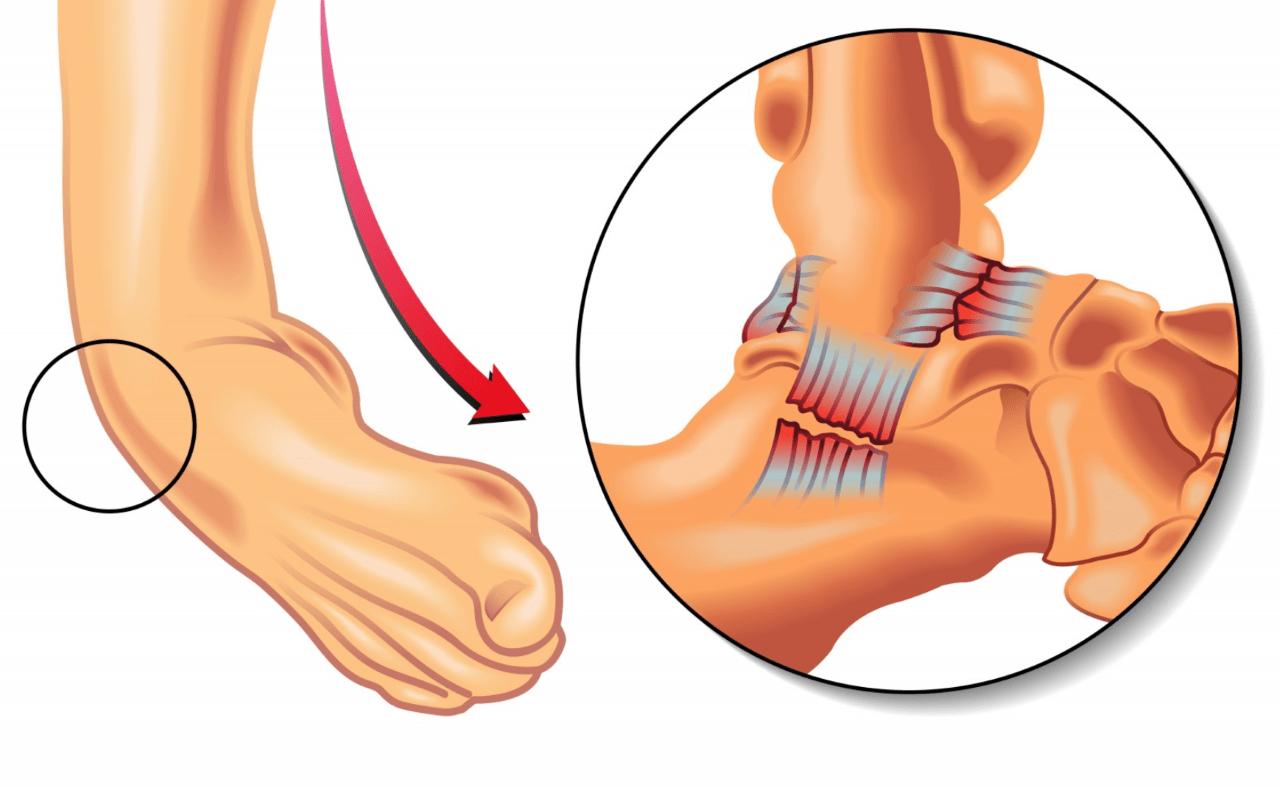 Causas del esguince de tobillo