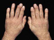 Todo lo que tienes que saber sobre la artrosis de muñeca y mano